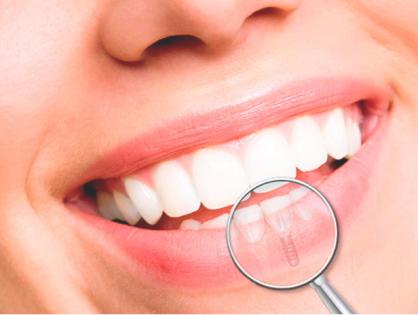 Implantes: 10 preguntas (y respuestas)
